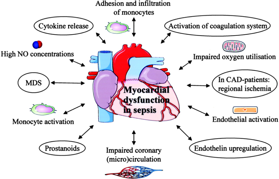 septisk kardiomyopati